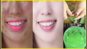 Skin Whitening Home Remedies – Aloe vera Gel Benefits