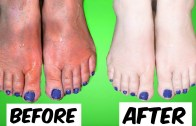 How To Get Soft, Beautiful, Younger Looking Hands & Feet in 5 Days