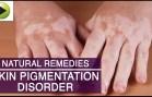 Skin Care – Skin Pigmentation – Natural Ayurvedic Home Remedies