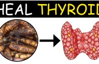 Thyroid Disease Can be Cured Permanently – Heal Thyroid Naturally – Orangehealth