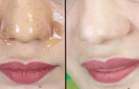 Easiest Way To Remove Blackheads & Whiteheads In Some Minutes – Remove Blackheads From Your Nose