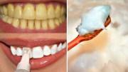 ये नुस्खा आपके गंदे पिले दांतो को एक मिनट में चमका देगा – Best Teeth Whitening Method