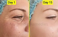 Japanese Antiaging Secret To Look 10 Years Younger – Antiaging remedy – Remove Wrinkes &amp – Acne