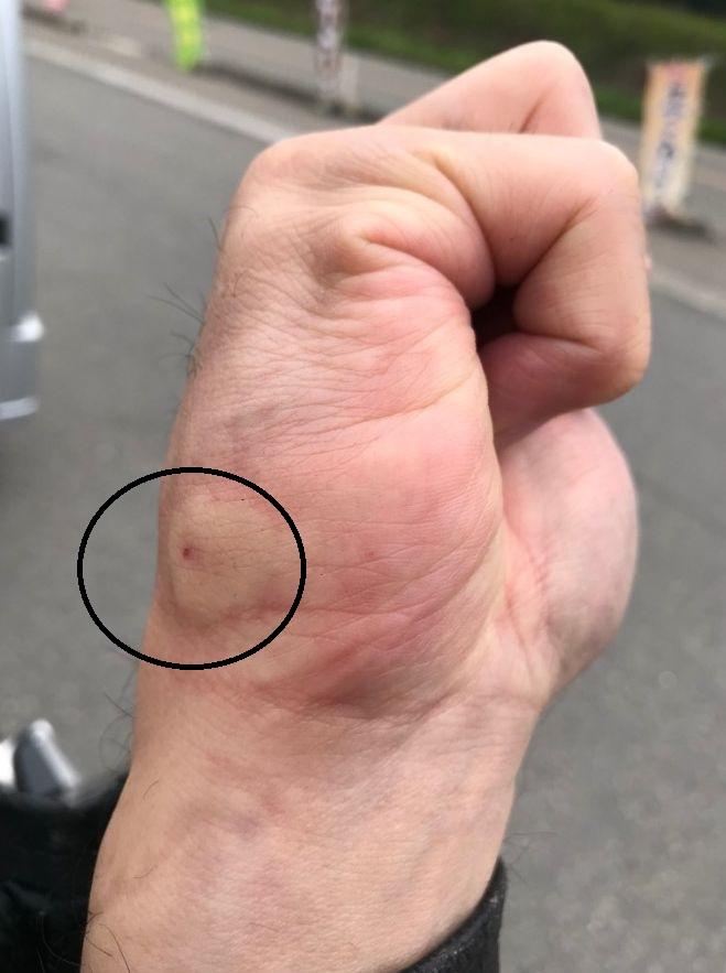 蜂 に 刺され た 時 の 対処 法