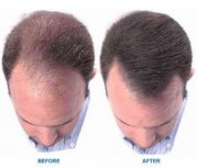 minoxidil receding hairline