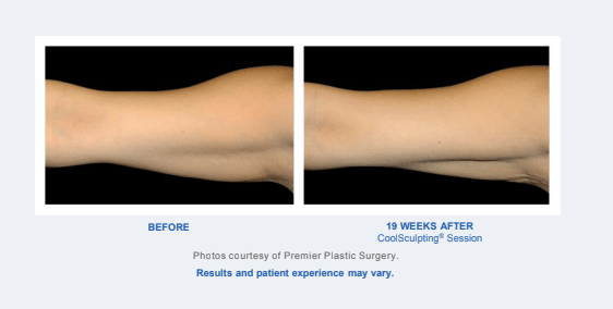 Before and After - Coolsculpting Results Arms