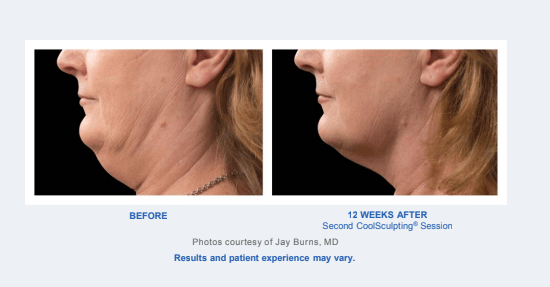 Before and After - Coolsculpting Results - Chin