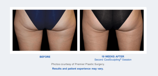 Before and After - Coolsculpting Results - Legs