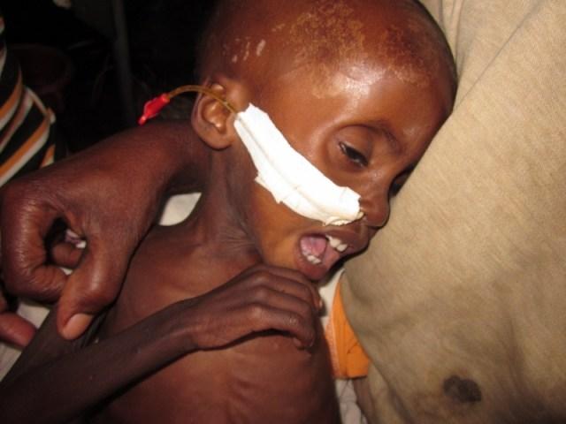 La fam encara existeix / El hambre todavia existe etiopia gambo