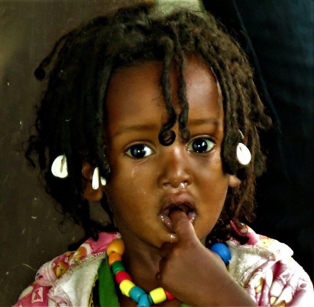 Sanidad Sin Fronteras africa