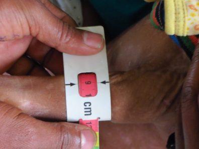 Más de 400 niñas y niños recuperados de la desnutrición aguda severa africa alegria gambo alegria sin fronteras gambo