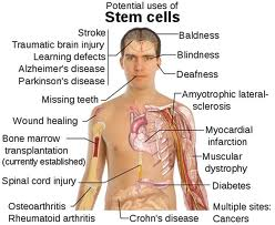 COPD Cures - Stem Cell Therapy, Natural Remedies, Management