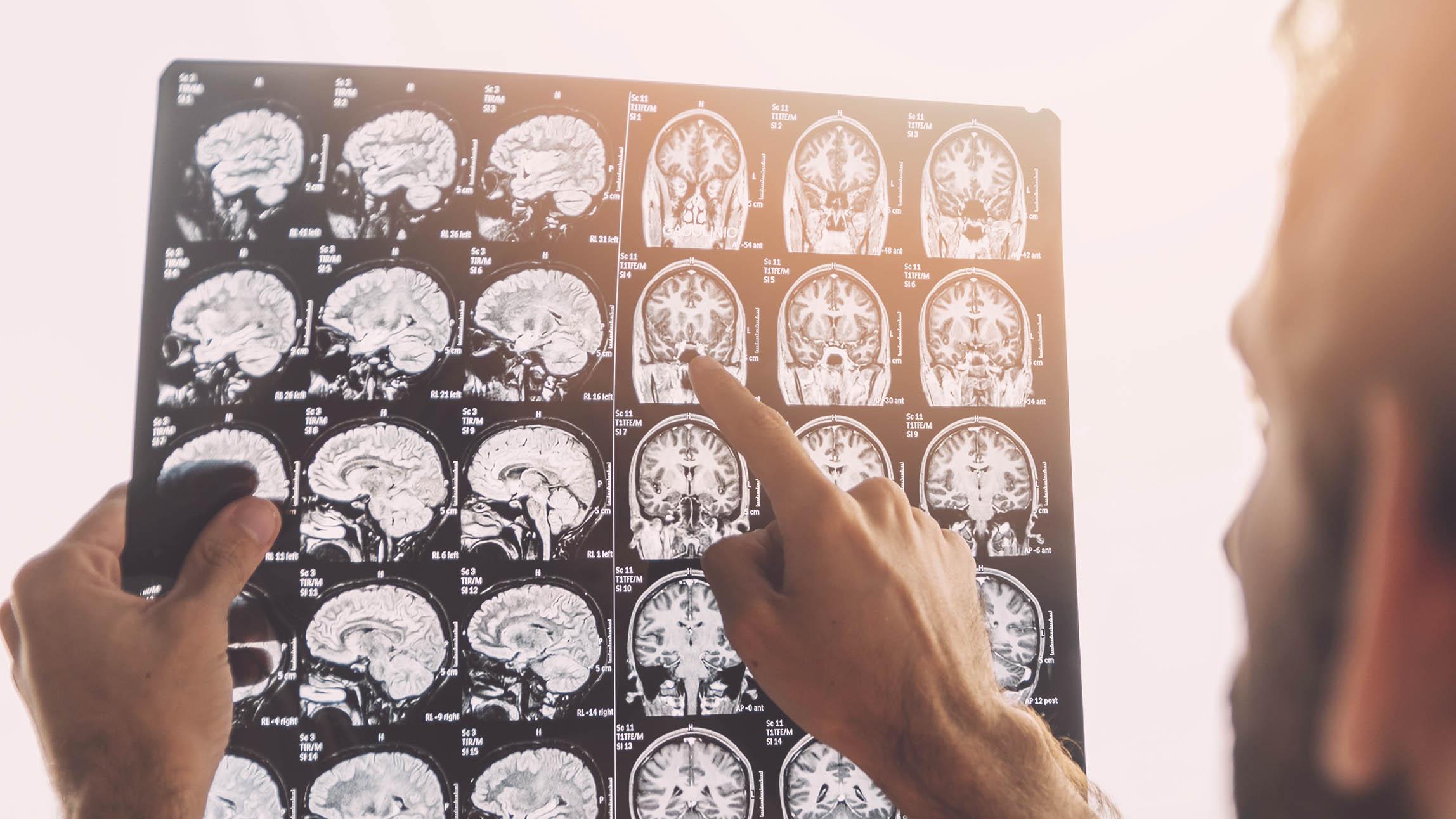 Neurologia - Coração Vivo