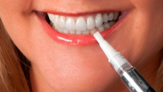 Специальные карандаши для очищения зубной эмали
