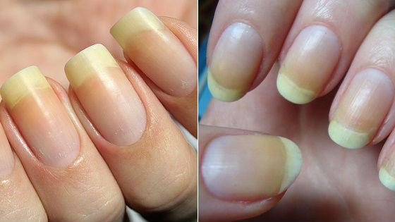 Желтизна на ногтевых пластинах