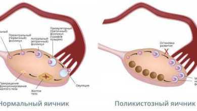 Photo of Синдром поликистозных яичников (СПКЯ)