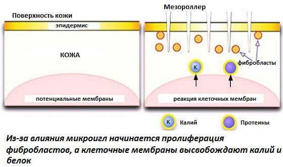 Принцип действия дерматороллера на кожу