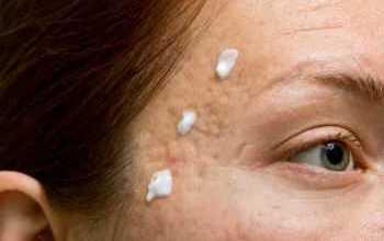 Photo of Эффективные мази от прыщей на лице. Применение, противопоказания
