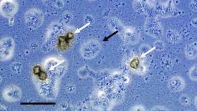 Photo of Уреаплазма — чрезвычайно опасная инфекция