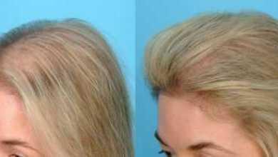 Photo of Сильнейшая маска для роста и против выпадения волос