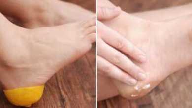 Photo of Лимон для пяток - лучшая помощь при трещинах