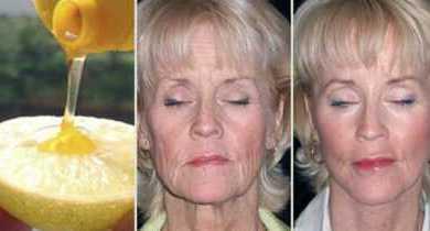Как выглядеть на 10 лет моложе с лимоном и медом
