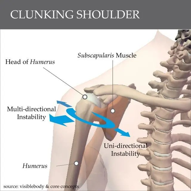 Clicking Shoulder
