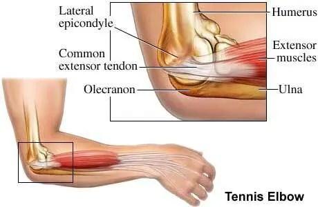 Tennis Elbow In Badminton