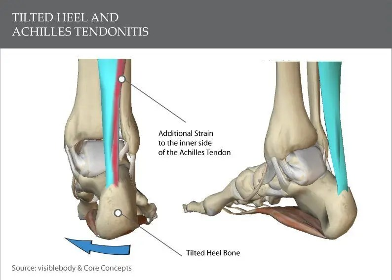 How a tilted heel can lead to achilles tendonitis