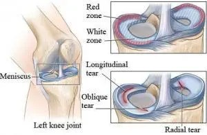 Knee Cartilage Tears