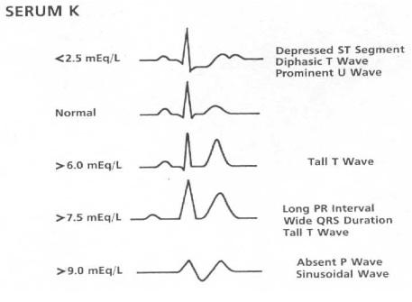 Hyperkalemia – Core EM