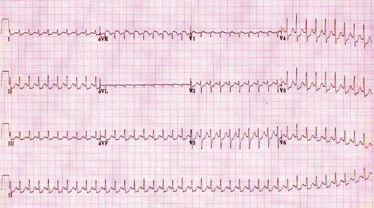 Atrioventricular Nodal Reentrant Tachycardia Core Em