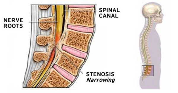 spinal stenosis Core Medical Group Brooklyn Ohio