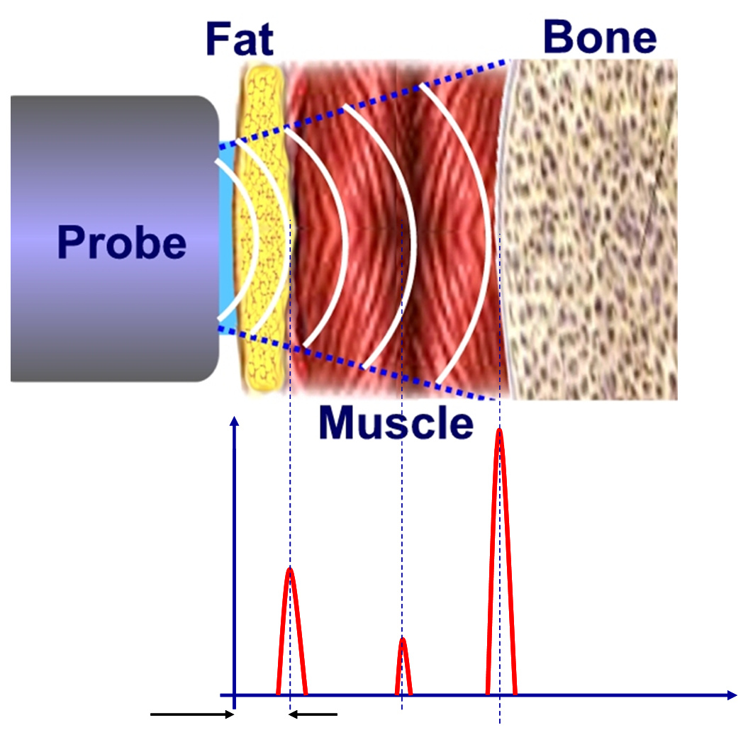 hight resolution of  body fat percentage can be determined the graph