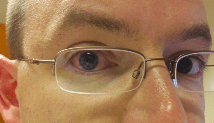 dehydration and computer usage from modafinil leads to red eyes