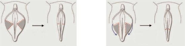 labioplastia 4