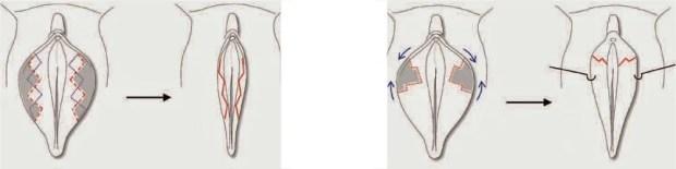 Corporal Core - labioplastia