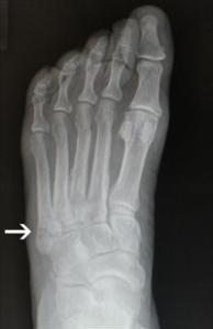 Jones Fracture X Ray