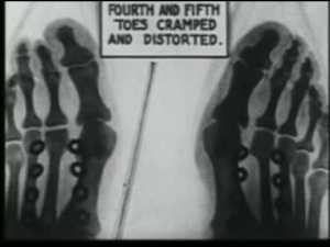 x ray shoe fit 1920s