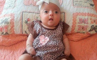 Família pede ajuda para salvar bebê com síndrome rara precisando de cirurgias com urgência