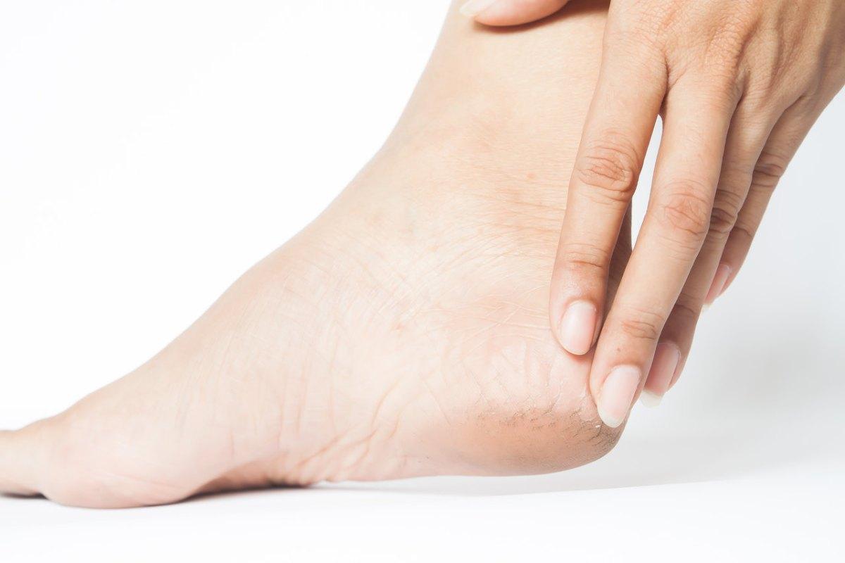 Curso completo plástica nos pés