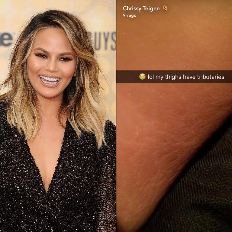 Chrissy Teigen Snapchats Her Stretch Marks  Chrissy