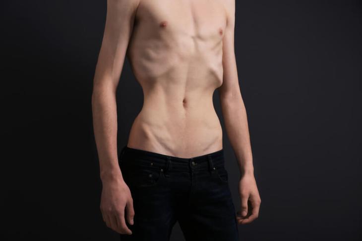 En los ultimos años han aumentado los casos de hombres que padecen de anorexia