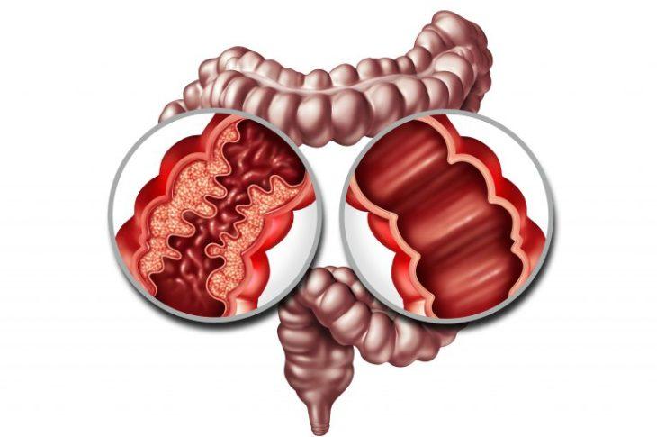 Daño en el intestino causado por la enfermedad de Crohn.