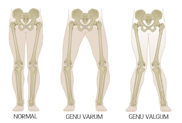 Piernas normales, con Genu Varo y con Genu Valgo