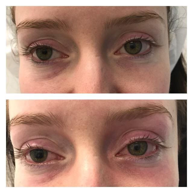 Treatment Gallery   Before and After Anti Ageing Treatments