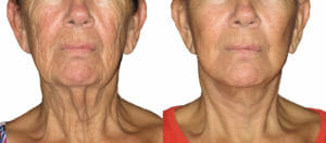 What Happens During A Mini Facelift Procedure? - Cosmetic ...