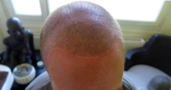 haarpigmentierung-nachher