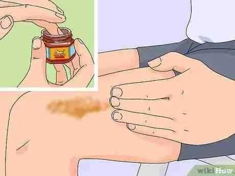 Cómo aplicar la Tiger Balm Casera