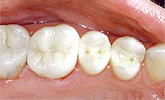 mercury-free dentists use composite